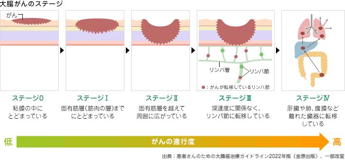 大腸がんのステージとステージ別5年生存率